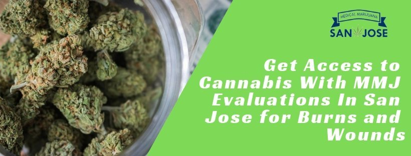 Get Access To Cannabis With MMJ Evaluations In San Jose For Burns And Wounds